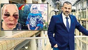 İstanbul'daki otelde dehşet! Kadına 2 gün işkence yaptı