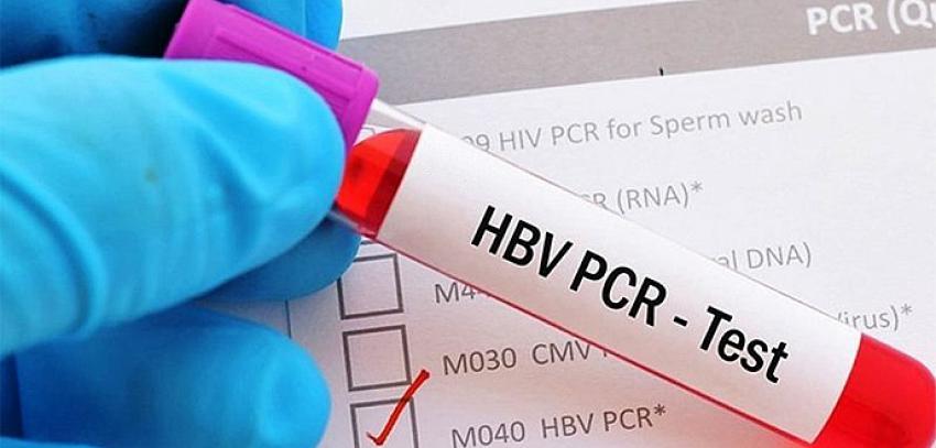 Yurt dışına çıkışlarda istenen PCR test ücreti belli oldu